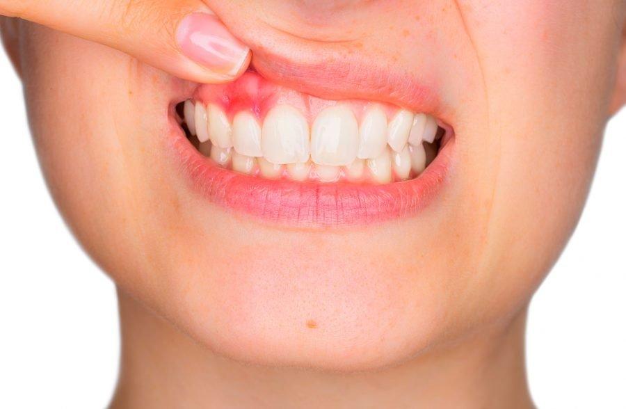 Dental Gum Diseas treatment