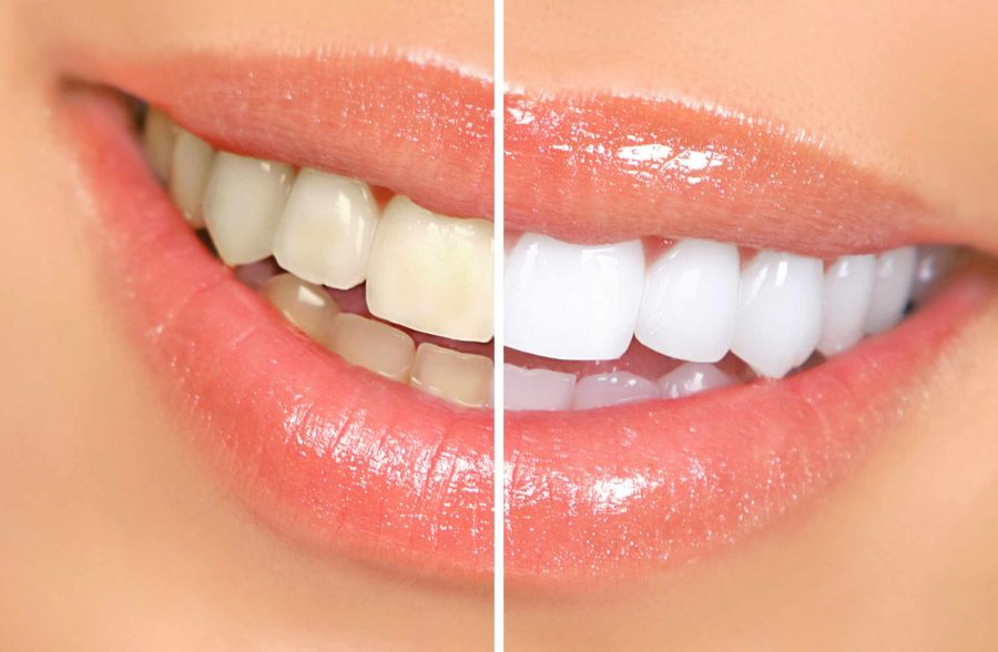 Teethwhitening London